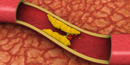 Нормальный холестерин норма
