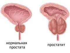 prostatit2