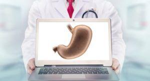 Гастроптоз - лечение заболевания