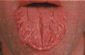 Глоссит и его лечение