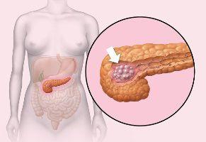 Жировая инфильтрация печение