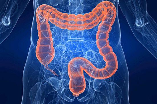 Лечение дивертикулеза кишечника