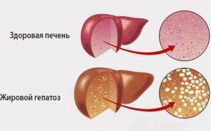 Как лечить жировой гепатоз