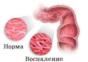 Болезнь Крона - лечение