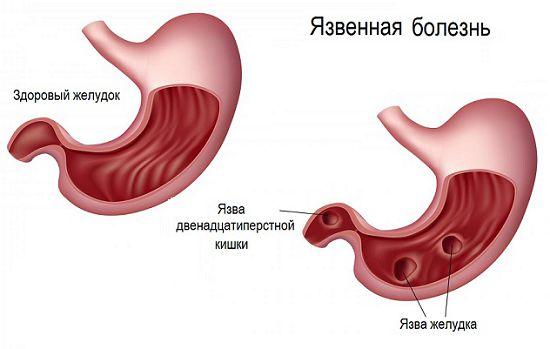 Методы лечения при онкологии