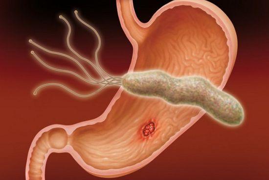 Хронический тонзиллит  симптомы лечение причины