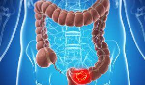 Лечение опухоли кишечника