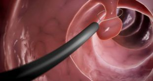 Полипы в желудке: лечение или удаление