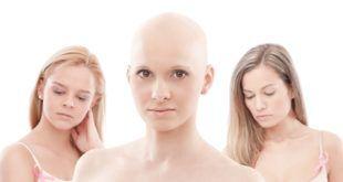Рак 3 стадия
