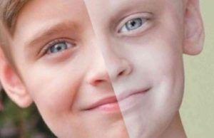 Прогресс в лечении рака