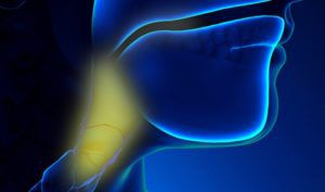 Рак горла первые симптомы