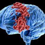 Рак слепой кишки 4 стадия прогноз
