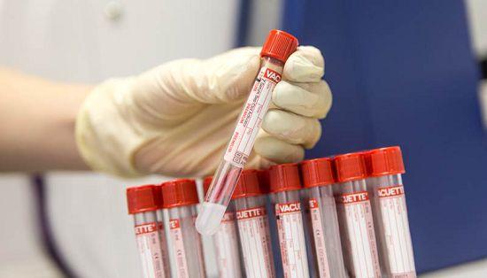 анализ на наличие паразитов в организме инвитро