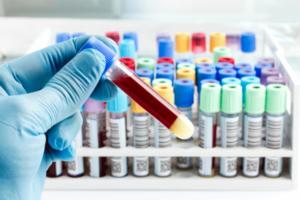 Диагностика рака - лечение