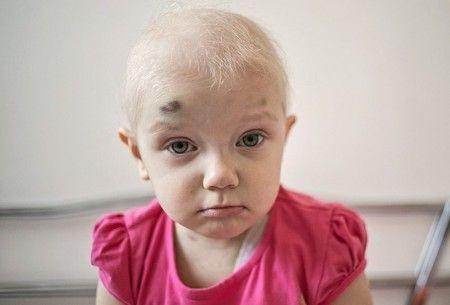 Лейкоз у ребенка признаки