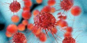 Лимфома и ее причины, а также лечение