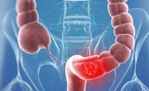 Рак кишечника - лечение и симптомы
