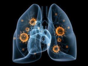 Как развивается рак легких