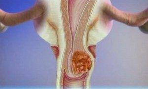 Рак матки лечение и симптомы
