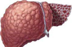 Рак печени лечение и симптомы