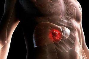 Рак печени и его симптомы