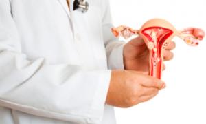 Рак шейки матки: симптомы и лечение