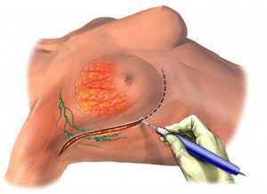 Операция по удалению рака молочной железы