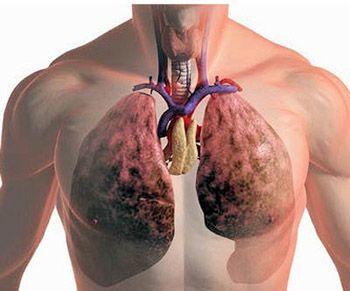 Чем лечить рак легких?