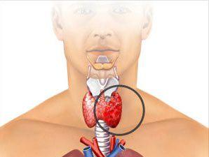 Медуллярный рак щитовидной железы