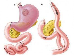 Питание после удаления желудка при раке