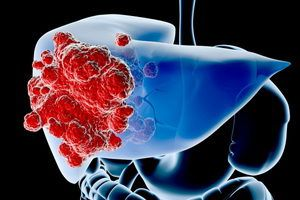 Как определить рак печени