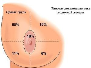 Как определить рак груди