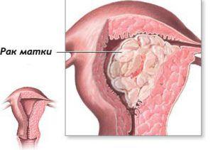Метастазы при раке матки