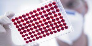 Миелома крови прогноз можно ли вылечиться
