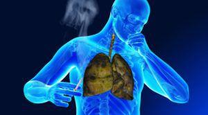 Рак легких: способы лечения
