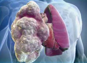 Рак легких 2 стадия: симптомы и лечение