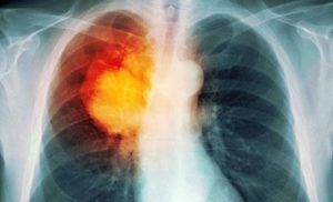 Рак легких 2 стадия: симптомы