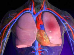 Рак легких 1 стадия