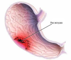 Онкомаркеры рака желудка