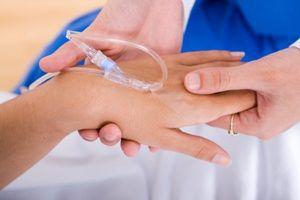 Как делают химиотерапию?
