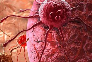 Лечение рака 2 степени