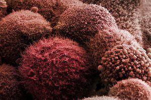 Метастазы в поджелудочной железе