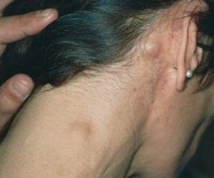 Метастазы в лимфоузлах