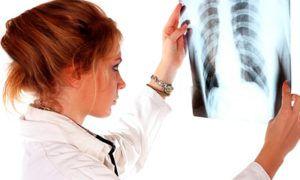 Чем лечить рак легких