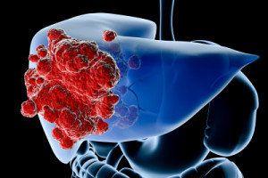 Рак печени: лечение народными средствами