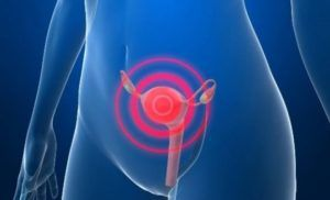 Рак матки 1 степени: лечение