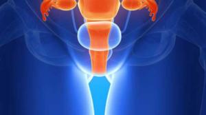 Рак матки 1 степени: симптомы