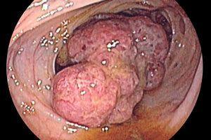 Рак прямой кишки 4 стадия