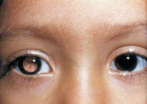 Рак глаза и симптомы