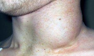 Рак лимфоузлов на шее